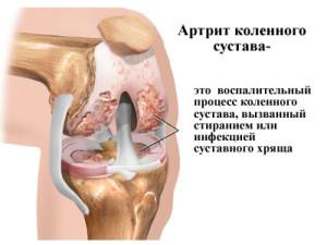 Артрит коленного сустава