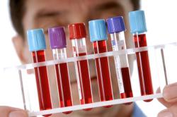 Анализ крови перед отопластикой