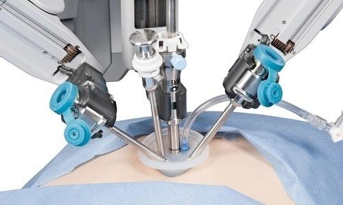 Лапароскопия применяется редко и только при частичном ущемлении грыжи
