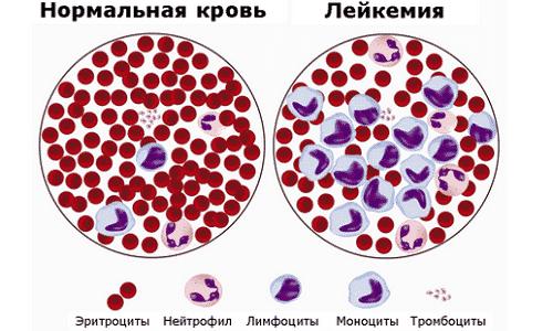 Нормальная кровь и кровь с лейкозом