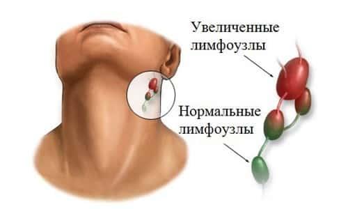 Увеличенные лимфоузлы при лимфоме