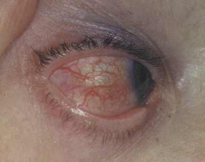Цистицеркоз проявляется через воспаление глазного яблока