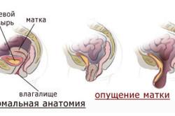 Схема выпадения матки и влагалища