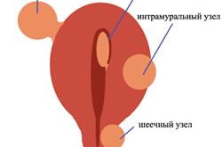 Схема фиброматоза матки