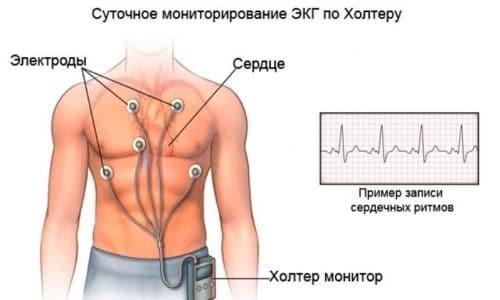 По результату мониторинга пациент получает распечатку, в которой в каждый момент времени зафиксирована работа его сердечной мышцы