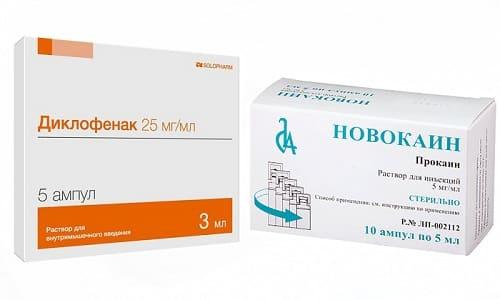 Лечение заболеваний опорно-двигательного аппарата выполняют с помощью Новокаина и Диклофенака