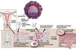ВПЧ - одна из причин воспаления шейки матки