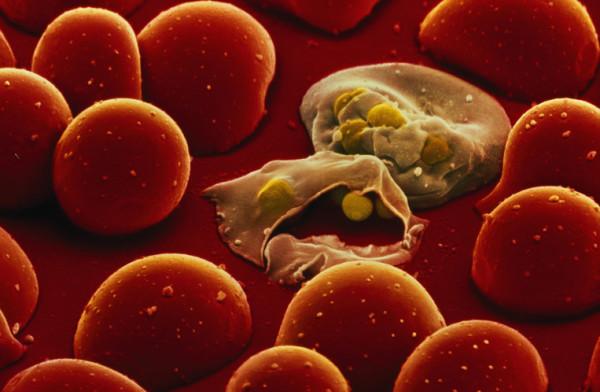 Инфекционный паразит поедает красные кровяные тельца (вид под микроскопом)