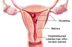 Полипы на шейке матки - одна из причин ДМК
