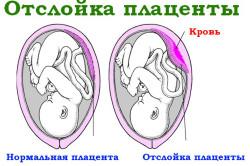Отслойка плаценты - причина бледно-розовых выделений