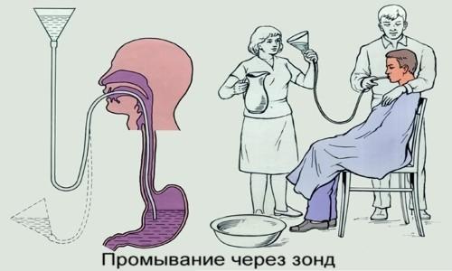 """Один из первых способов выведения """"нечистот"""" из желудка - это промывание"""
