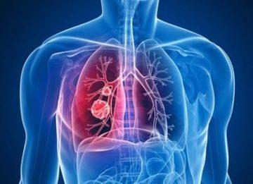 Эффект химиотерапии при раке легкого на разных стадиях
