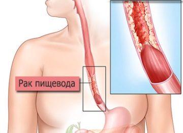 Рак пищевода: причины и симптомы первые