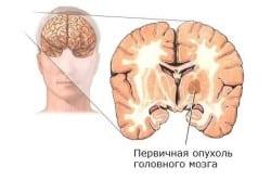 Рак пищевода II стадии