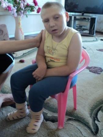 У ребенка наблюдается задержка в развитии, нарушение органов зрения и ЦНС