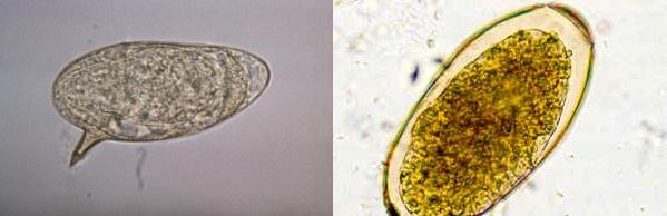 Яйца гельминтов: справа - описторх, слева - шистосома