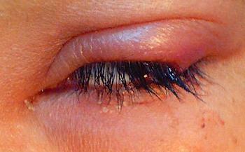 Иногда нарушения глаз доходят до хориоретинита