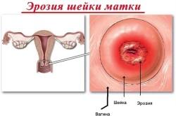 Показания к криодеструкции при эрозии шейки матки