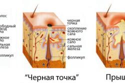 Схема образования прыщей