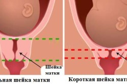 Сравнение нормальной и короткой шейки матки