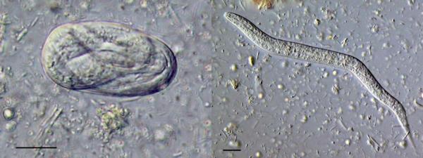 Стронгилоиды: слева - яйцо с формирующимся паразитом, справа - взрослая особоь