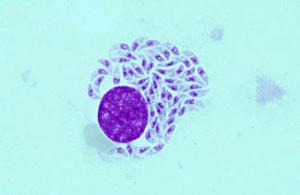 Мельчайший и широко распространенный паразит - токсоплазма