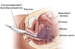 Трансвагинальное УЗИ для определения фертильности