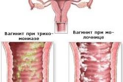 Разновидности вагинита