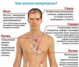 В чем особенность злокачественной гипертонии
